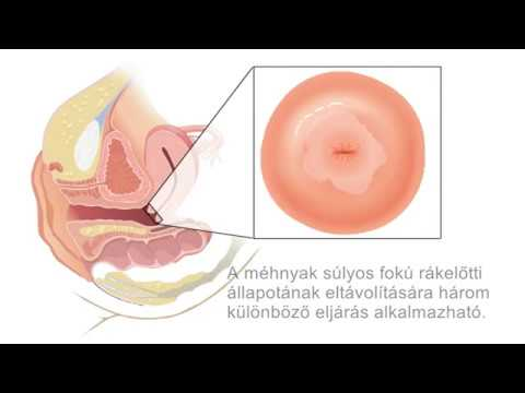 a helminthiasis megelőző kezelése