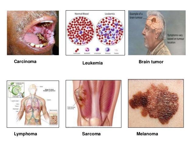 Papilloma icd 10 Mikrobiális kód 10 prosztata adenoma