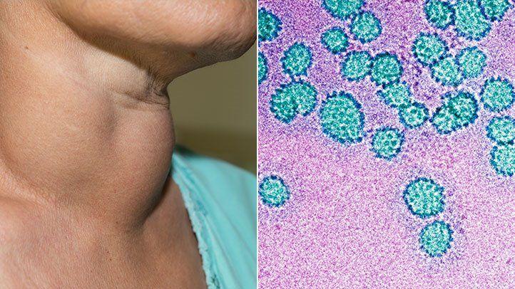 papillomavírus-kórokozó felelős)