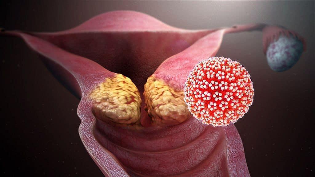 papilloma vírus ugola ember