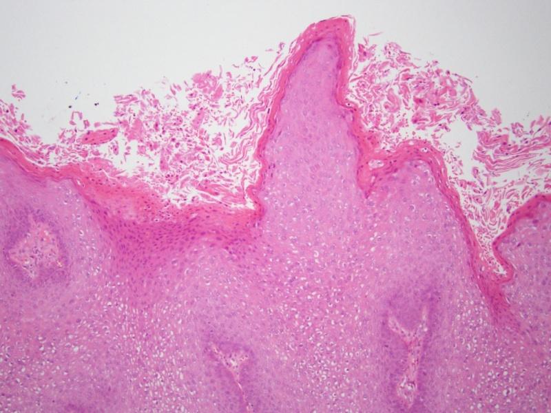 a condyloma fertőzés forrása