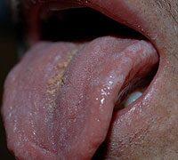 A humán papillomavírus és a szájüregi daganatok   tancsicsmuvelodesihaz.hu