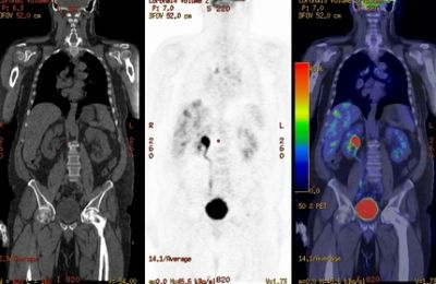 CT-kolonográfia