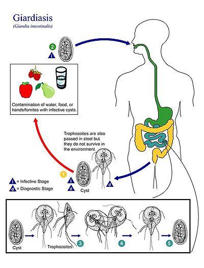 hogyan definiálható a giardiasis