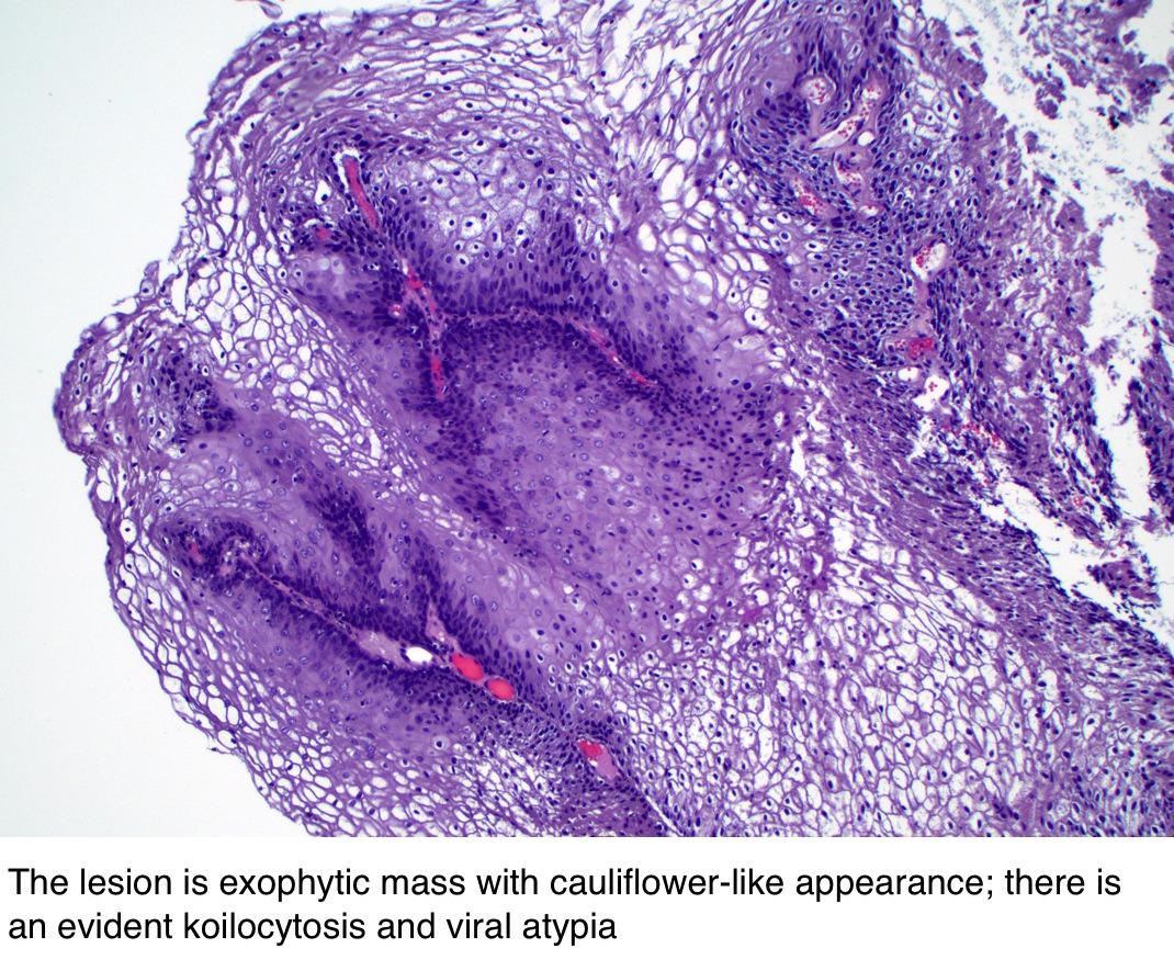 condyloma acuminatum vs pikkelyes papilloma)
