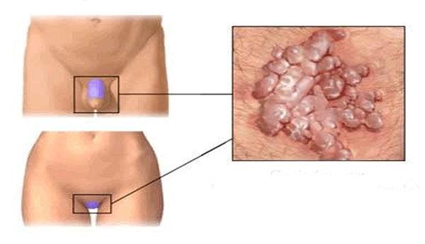 condyloma a mellbimbón