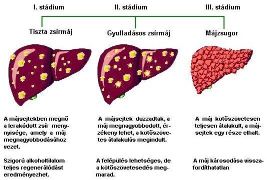 4. stádiumú rák - Cirrózis