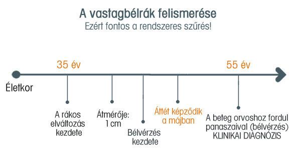 A vastagbélrák - Mutáció.hu