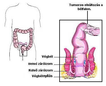 vastagbélrák patogenezise