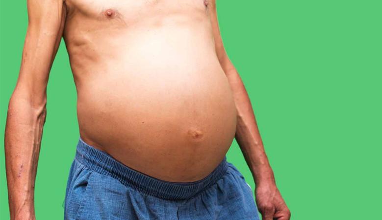 ascites kezelése terhes nőknél)