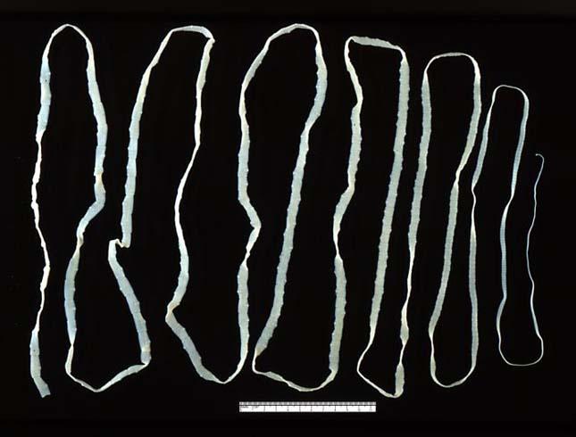 típusú férgek férgek fertőződjön nemi szemölcsökkel