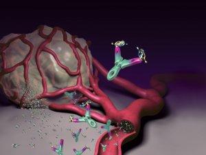 a rák gyengíti papilloma pilastro palatino