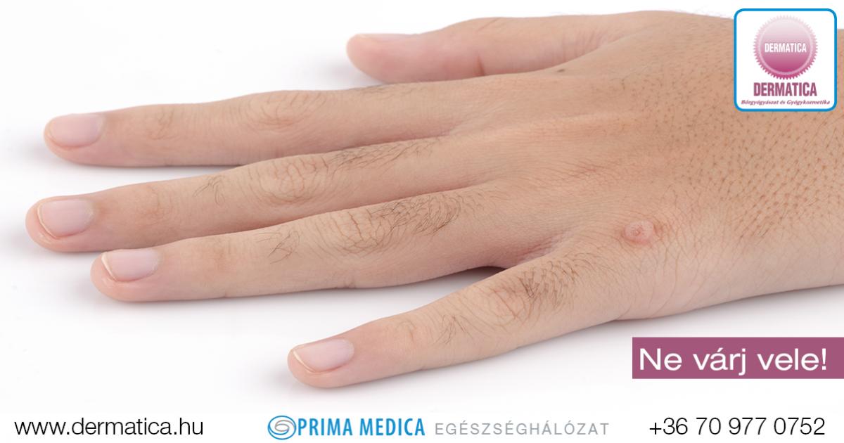 szemölcs vírus az ujjakon