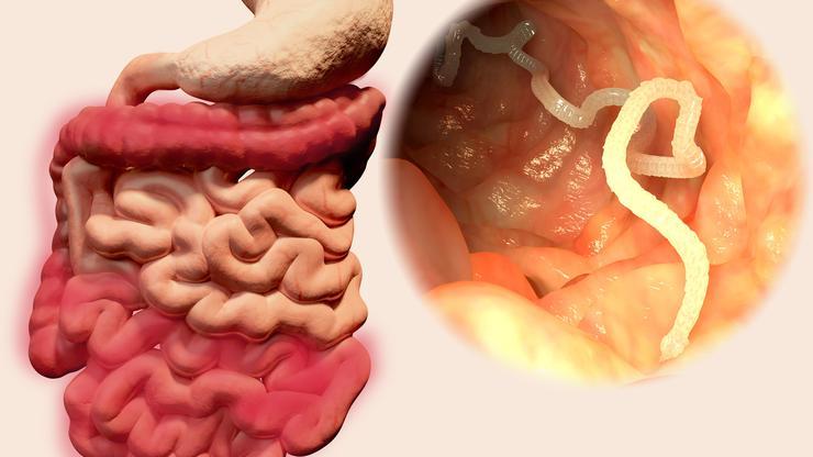 paraziták és crijevima ljudi