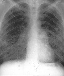 kerek féreg a tüdőben papilloma vírus 58