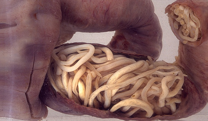 crijevni paraziták kod djece