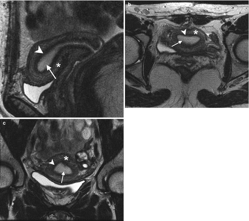 endometrium rák a ct-n)