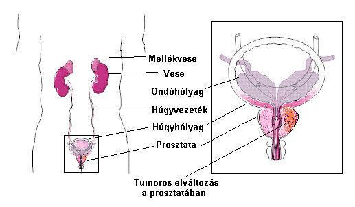féreghajtó szoptatás