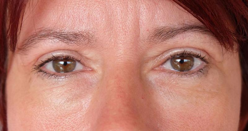 Papilloma a szem sarkában, A klinikai kép jellemzői