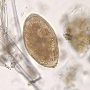 Fascioliasis emberben, Fasciolosis (Májmételyféreg fertőzés)