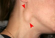 rák hpv oropharynx