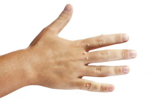 szemölcsök a kéz jele hiv szemölcsök az ajkak nyálkahártyáján