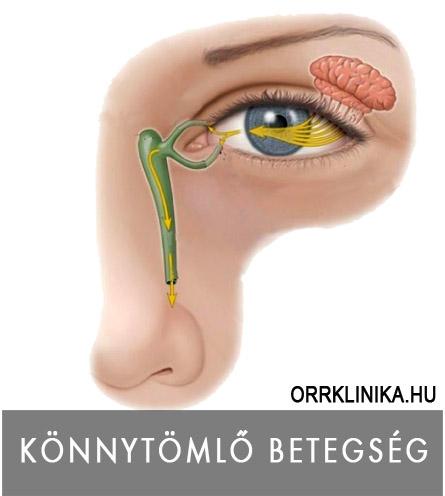 Idegsejt eredetű (neuronális) agydaganatok