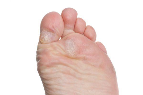 lábgomba