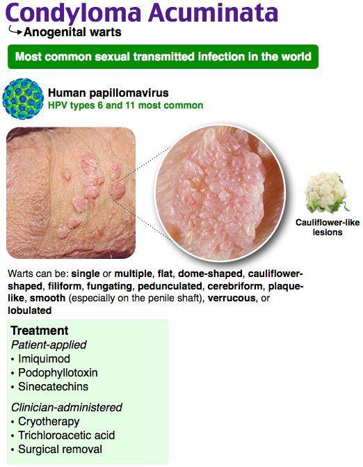 HPV-szűrés és tipizálás - tanitok-egyesulete.hu