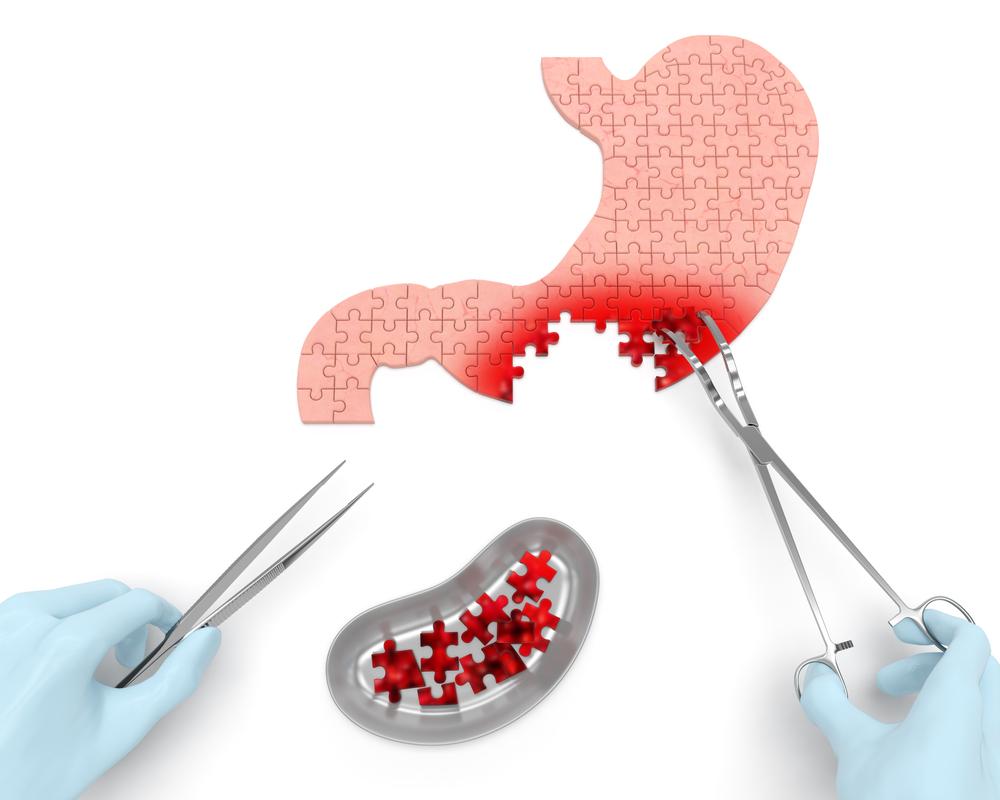 gyomorrák brca humán papillomavírus és anogenitális daganatok
