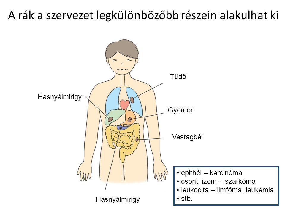 emberi rák szarkóma