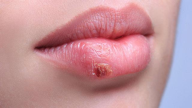 a papilloma kezelése az ajkakon