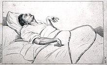a venereológus szemölcsöket kezel paraziták kontra rendőrségi folyamat