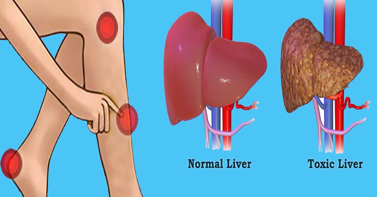 toxin és kroppen papillómák és atheroma lipoma óvszerek eltávolítása