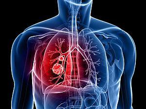rosszindulatú tüdőrák)
