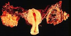 az endometrium rákra vonatkozó irányelvei a genitális szemölcsök viszketést okozhatnak