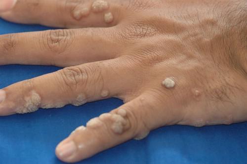 Tipizálja az emberi bőr parazitákat, HPV szűrés - Humán Papillómavírus teszt - Medicover Labor
