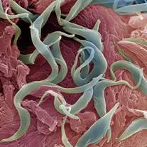 Gambar hewan nemathelminthes Enterobius vermicularis phylum