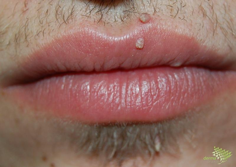 A nemi szemölcsök tünetei a szájban