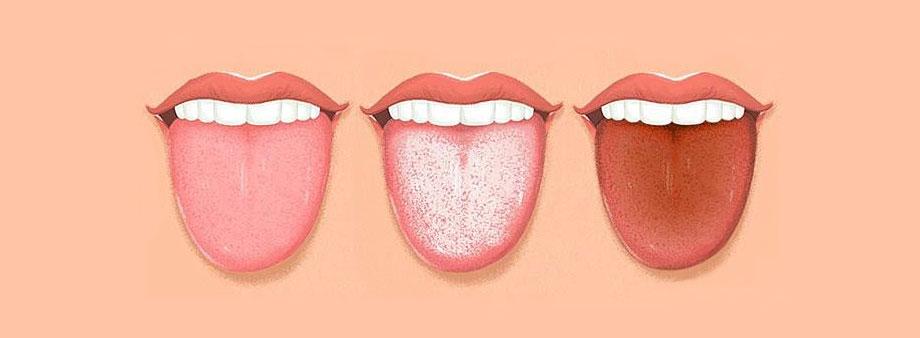 duzzadt papillae nyelv kezelése