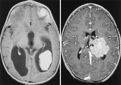 Choroid papilloma: a choroid plexus papilloma