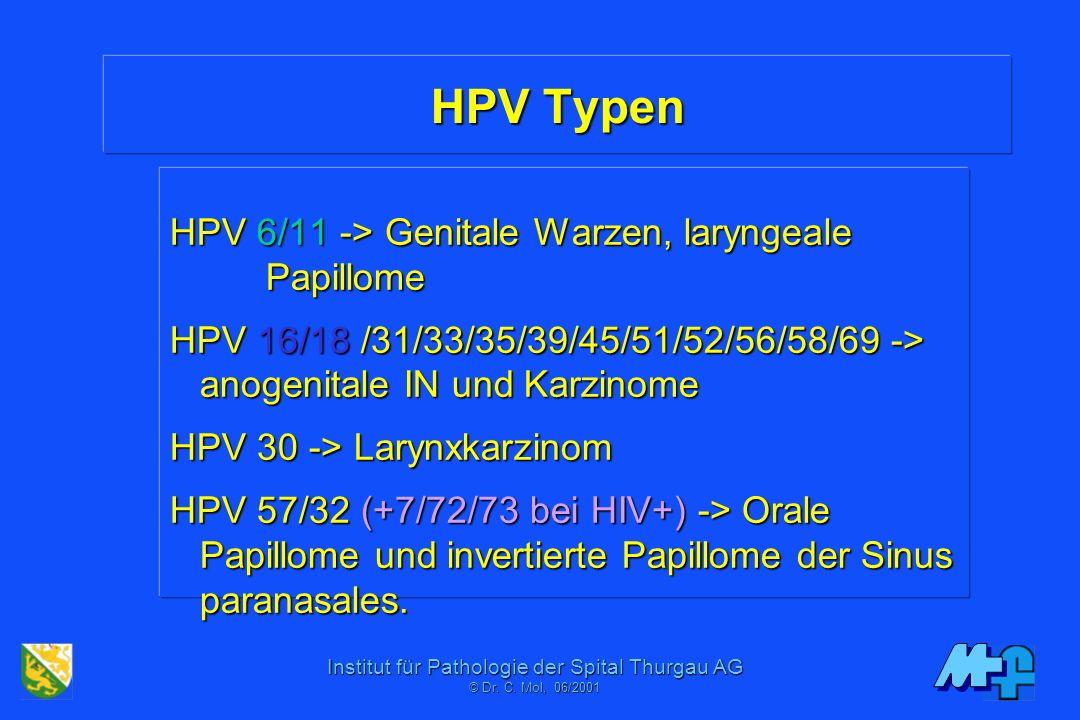 A nyelőcsődaganat kockázatát is növelheti a HPV - HáziPatika