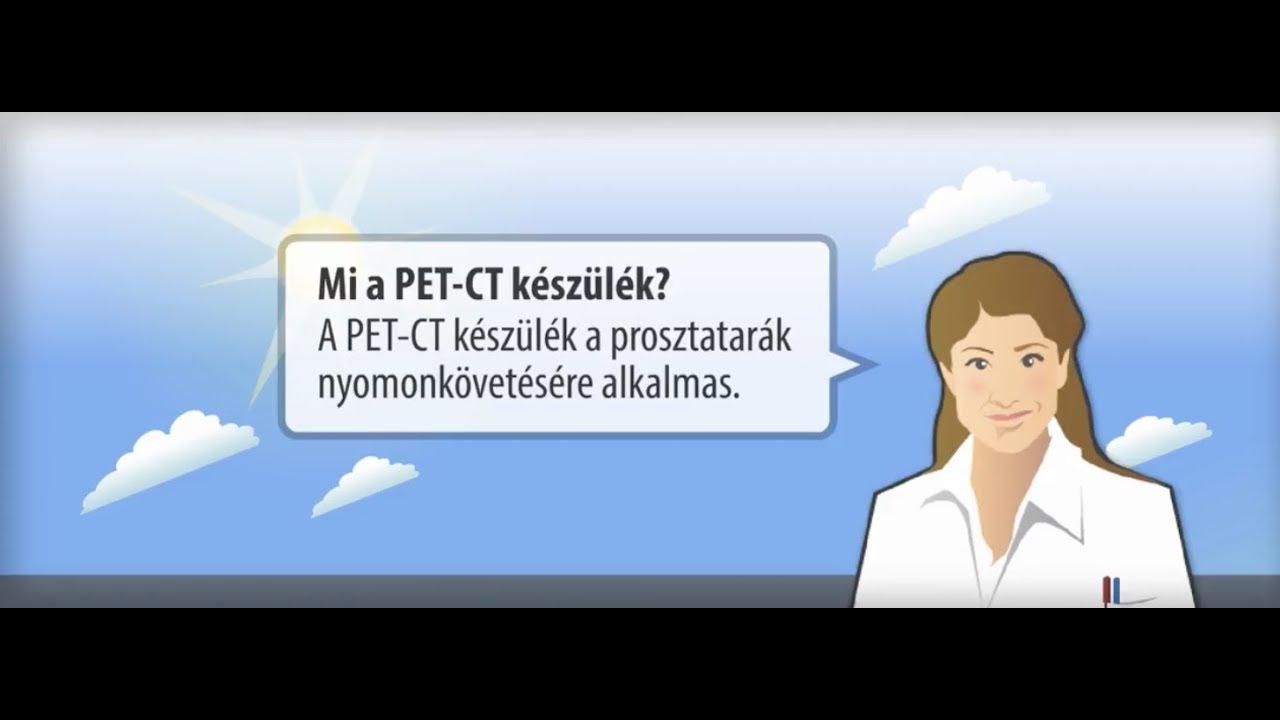 prosztatarák metasztatikus csontfájdalom)