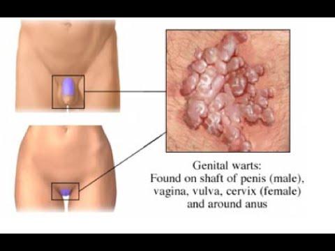 Hogyan kell élni, ha condyloma van, HPV tévhitek és tények