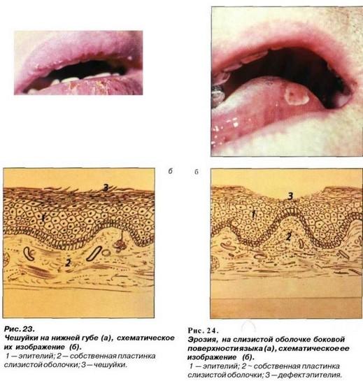 a genitális szemölcsök kezelése resorcinollal