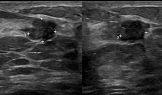 ductalis papilloma ultrahang
