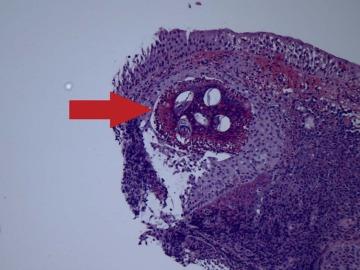 schistosomiasis hematuria szemölcsök a mellkason lévő nőknél