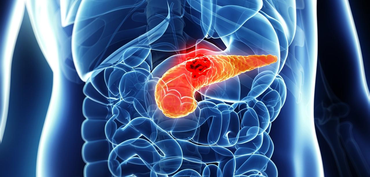 hasnyálmirigyrák gyomornyílás elzáródása