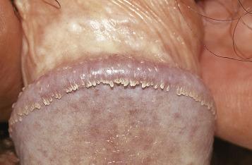 A condyloma jelei férfiaknál - Vírusos szemölcs tünetei és kezelése - HáziPatika