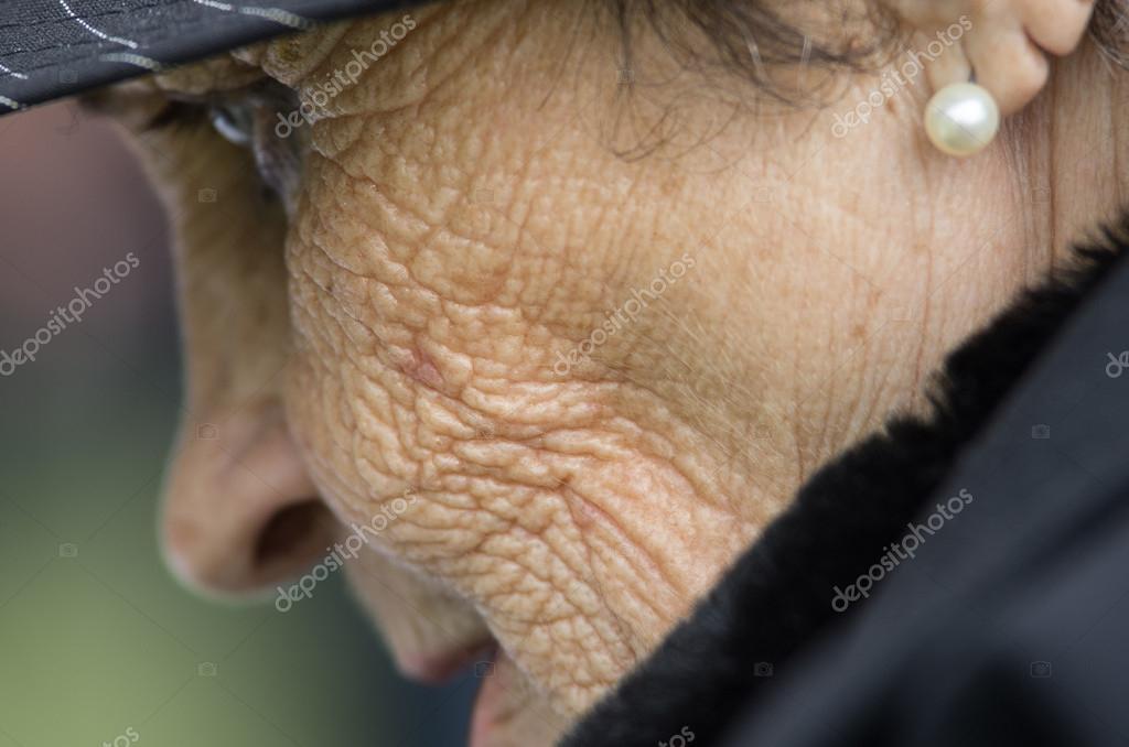 emberi papillomavírus anogenitális fertőzése icd 10